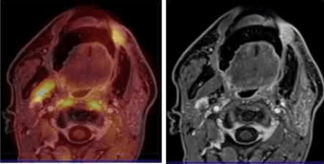 PET-MRI-in-neck-cancer