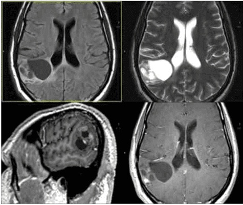 Right-parietal-Grade-II-Oligoastrocytoma.